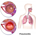 Main Difference - Pneumonia vs Pneumonitis