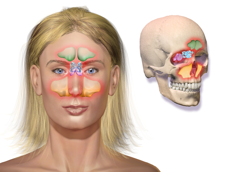 Difference Between Sinusitis and Rhinosinusitis