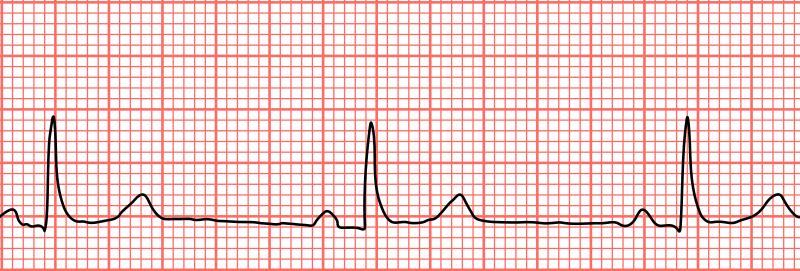 Key Difference - Tachycardia vs Bradycardia