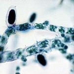 Difference Between Unilocular and Plurilocular Sporangia