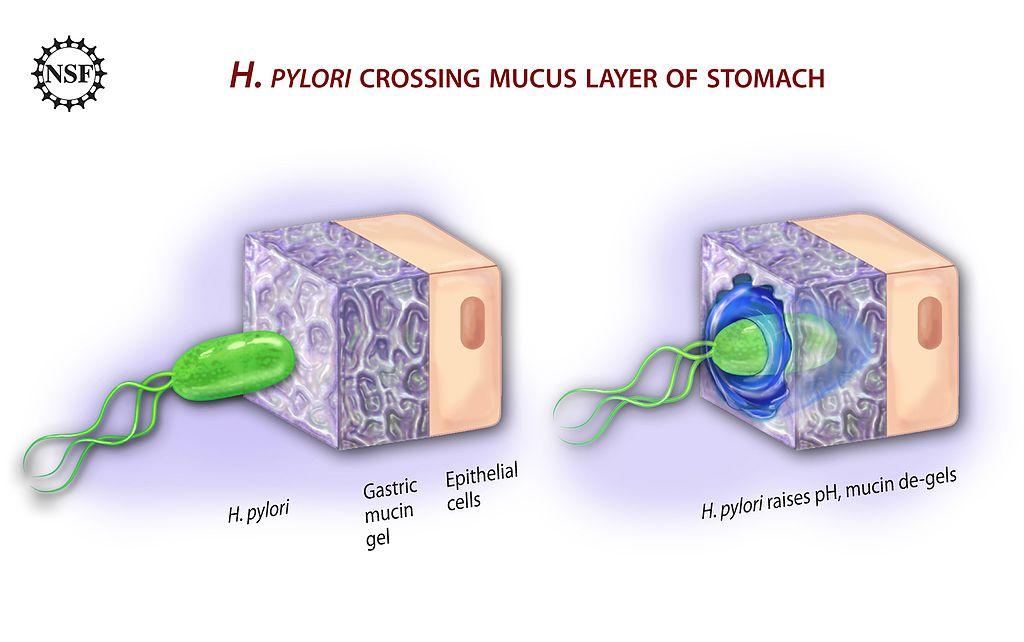 Difference Between H.pylori IGG and IGA