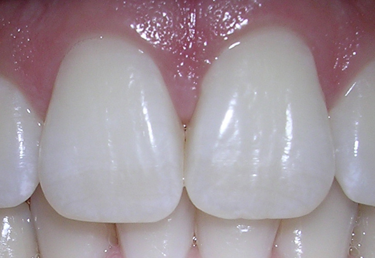 Difference Between Maxillary Central And Lateral Incisor L Maxillary