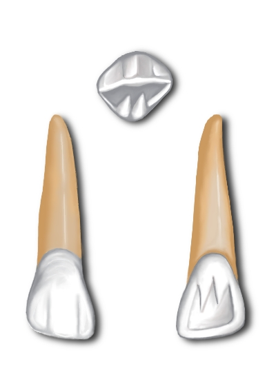 Key Difference Between Maxillary Central and Lateral Incisor