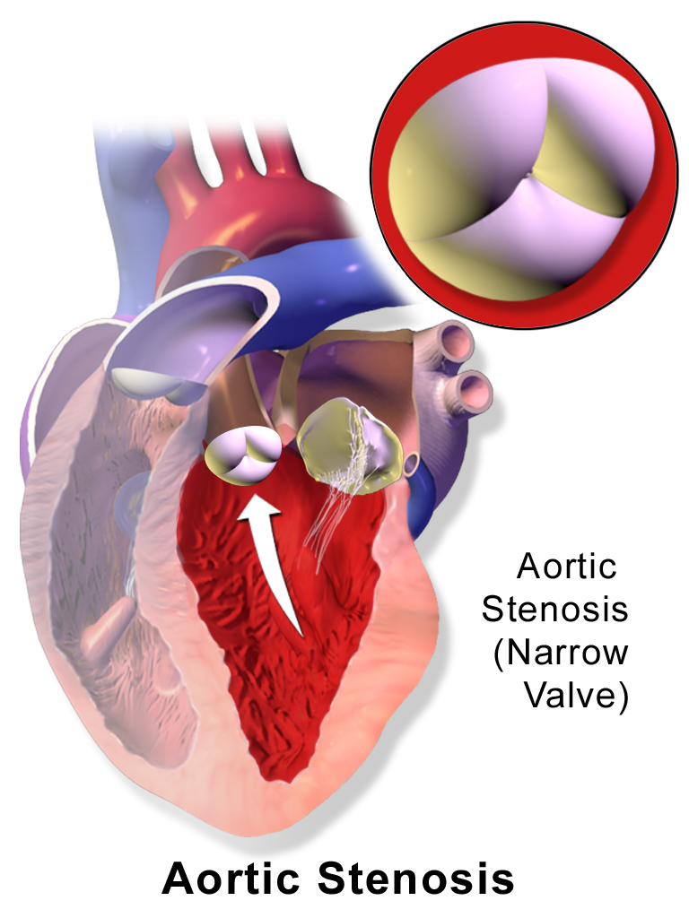 Key Difference Between Mitral Valve and Aortic Valve