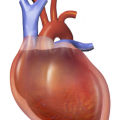 Difference Between Pericardial Effusion and Cardiac Tamponade