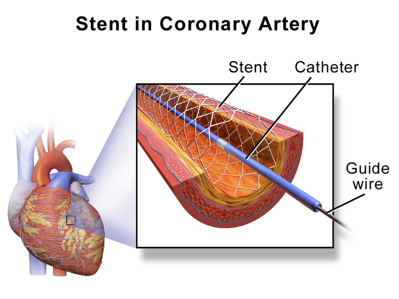 Key Difference Between Angioplasty and Stent