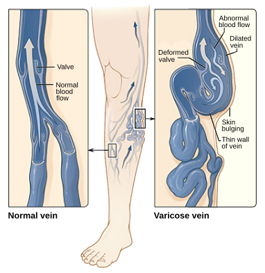 Key Difference Between Deep Vein Thrombosis and Varicose Veins