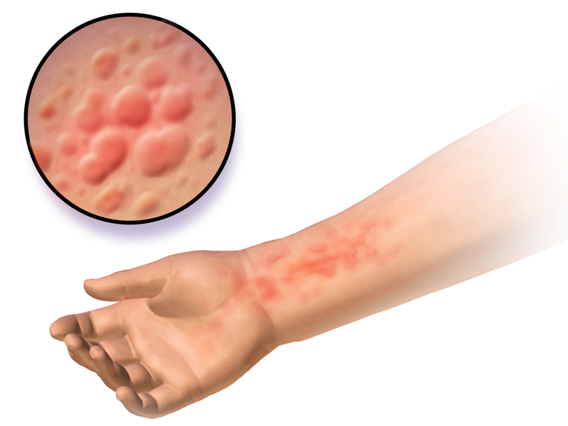 Difference Between Hives and Bug Bites_Figure 02