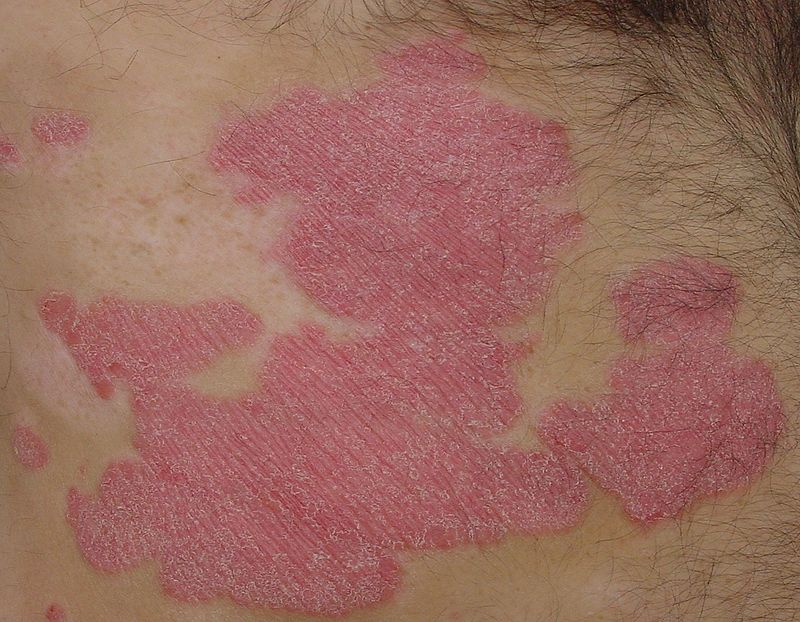 Key Difference Between Plaque Psoriasis and Psoriasis