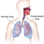 Difference Between Pleural Effusion and Pneumonia