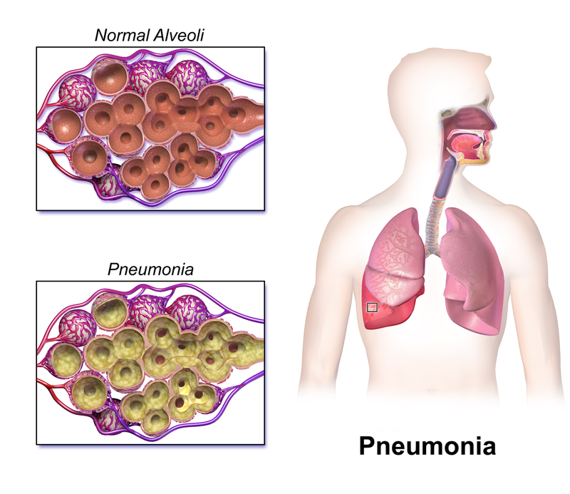 Key Difference Between Pleural Effusion and Pneumonia