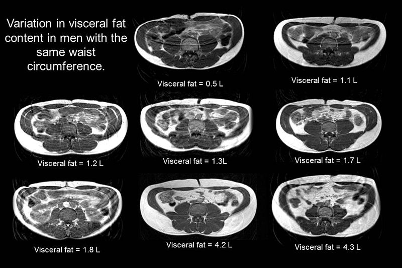 Difference Between Visceral Fat and Subcutaneous Fat
