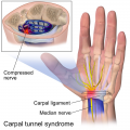 Key Difference Between Arthritis and Carpal Tunnel Syndrome