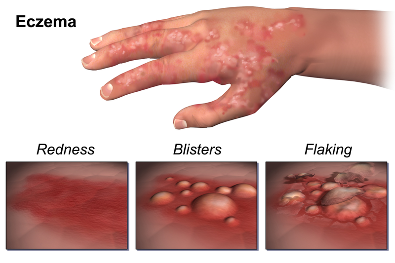 Key Difference Between Atopic Dermatitis and Eczema