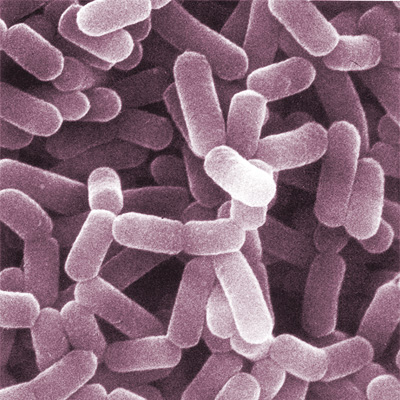 Difference Between Lactobacillus and Bifidobacterium