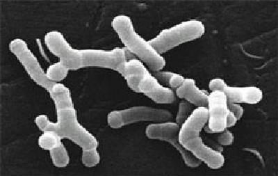 Key Difference Between Lactobacillus and Bifidobacterium