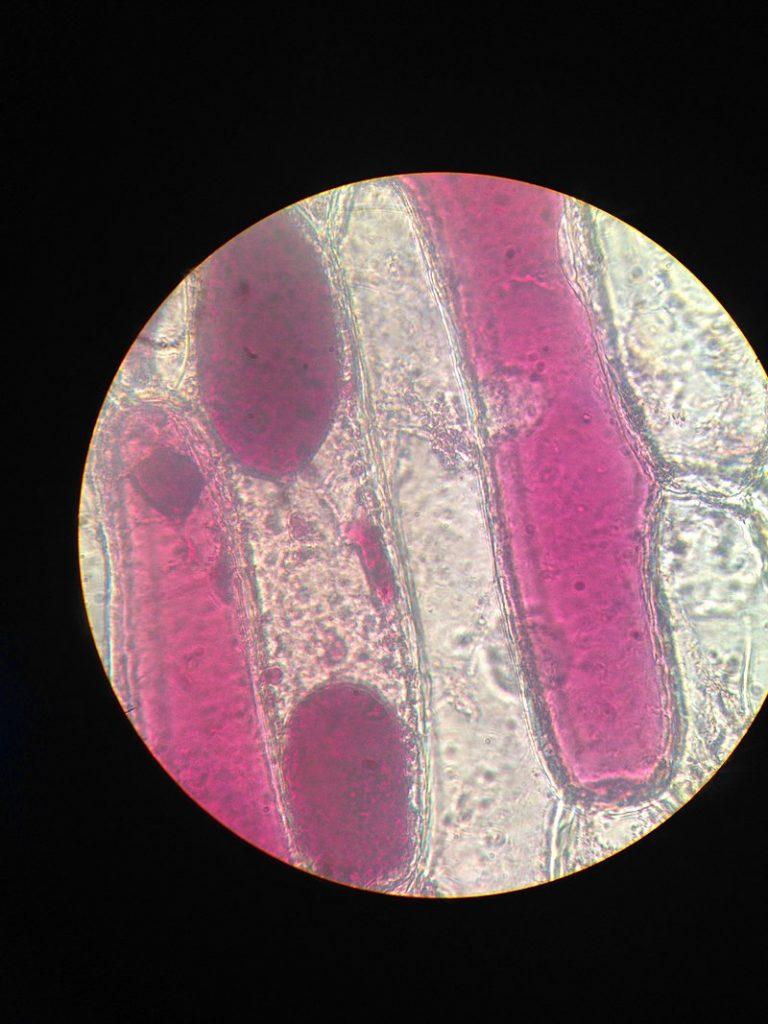 Key Difference Between Plasmolysis and Deplasmolysis