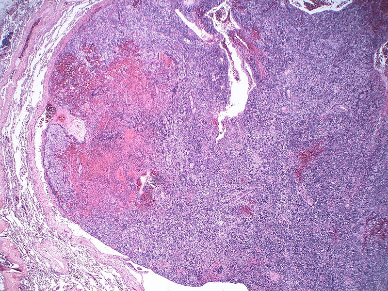 Difference Between Thymoma and Thymic Carcinoma