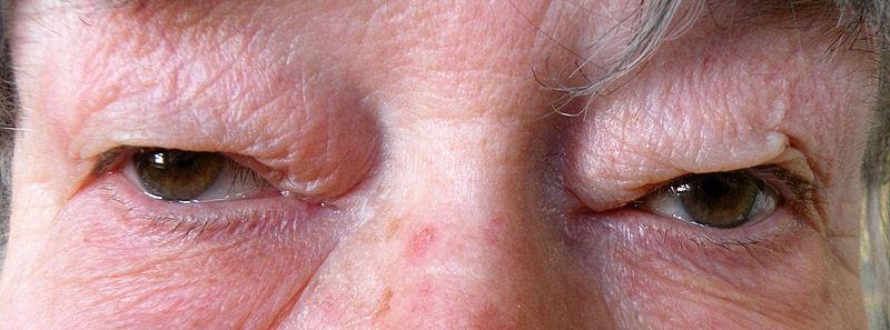 Difference Between Blepharochalasis and Dermatochalasis