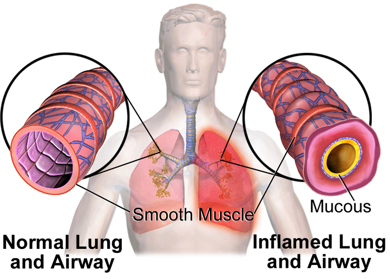 Difference Between Bronchospasm and Bronchoconstriction