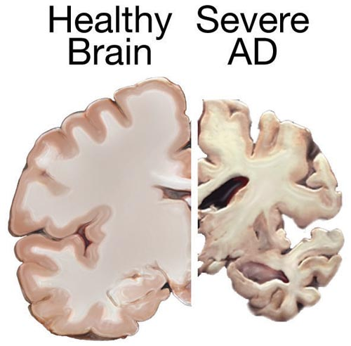 Difference Between Huntington's disease and Alzheimer's
