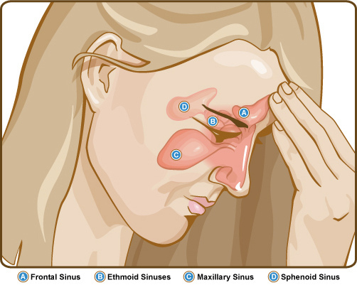 Difference Between Sinus Infection and Upper Respiratory Tract Infection