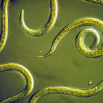 Difference Between Nematodes and Cestodes