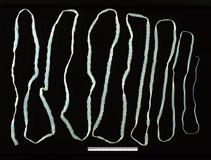 Key Difference Between Nematodes and Cestodes