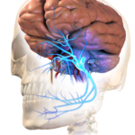 Difference Between Temporal Arteritis and Trigeminal Neuralgia