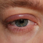 Difference Between Blepharitis and Stye