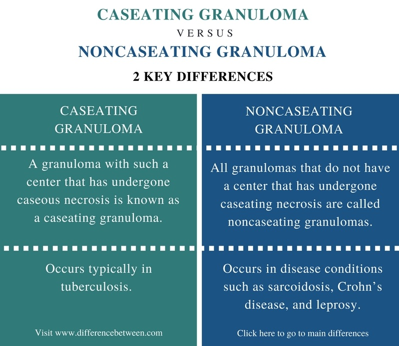 Difference Between Caseating and Noncaseating Granuloma - Comparison Summary