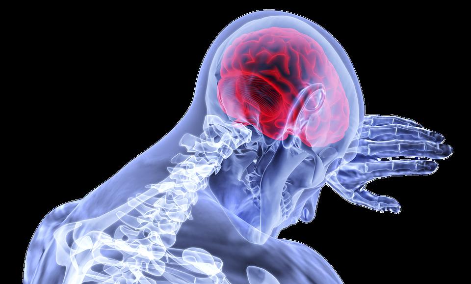 Key Difference - Brain Hemorrhage vs Stroke