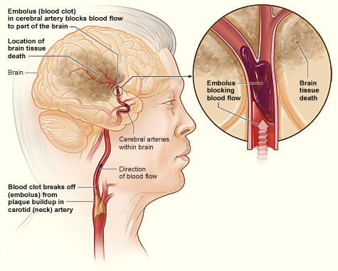 Difference Between Brain Hemorrhage and Stroke