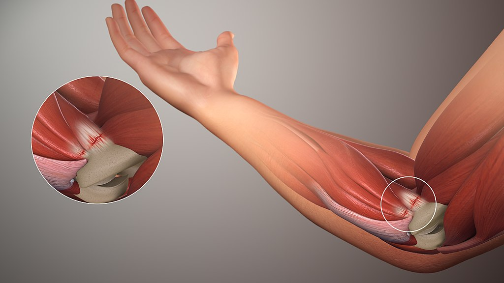 Key Difference - Golfer's Elbow vs Tennis Elbow