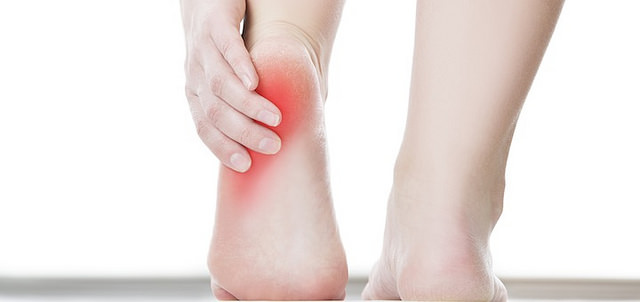 Difference Between Heel Spurs and Plantar Fasciitis