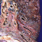 Difference Between Interstitial Lung Disease and Bronchiectasis