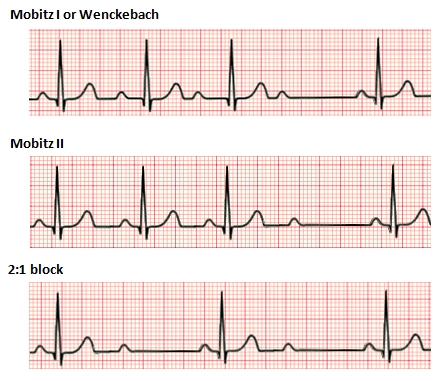 Difference Between 1st 2nd and 3rd Degree Heart Block_Figure 2