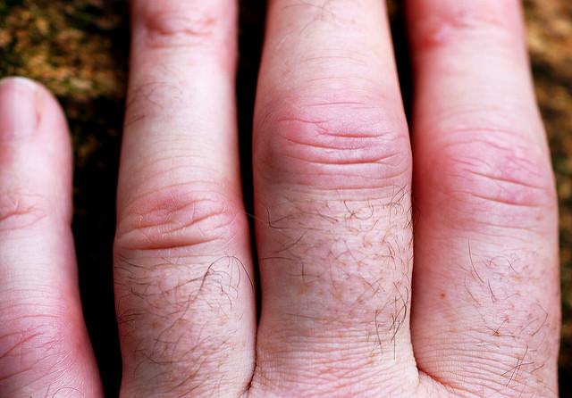 Key Rheumatoid Arthritis Symptoms