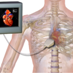 Difference Between EKG and Echocardiogram