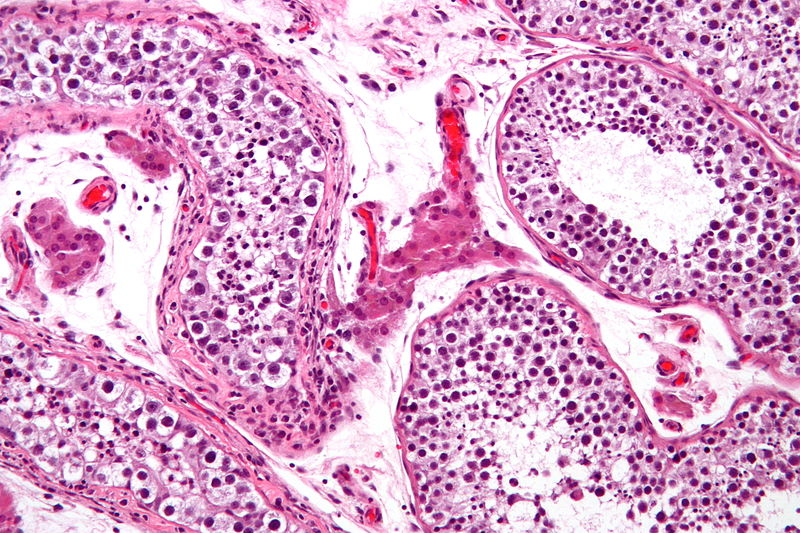 Key Difference Between Hyperplasia and Neoplasia