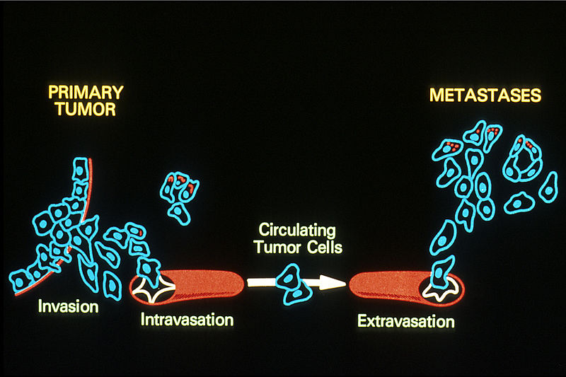 Key Difference Between Invasion and Metastasis