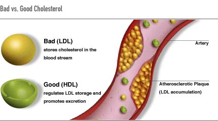 Key Difference Between Dietary Cholesterol and Blood Cholesterol