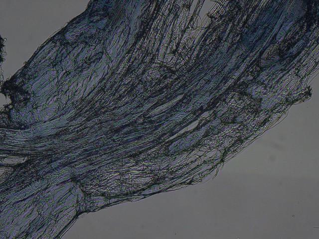 Ectomycorrhizae vs Endomycorrhizae
