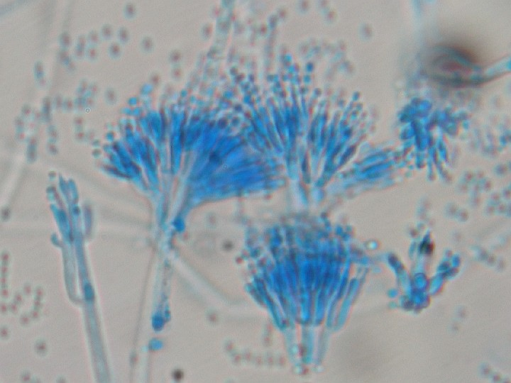 Difference Between Aspergillus and Penicillium