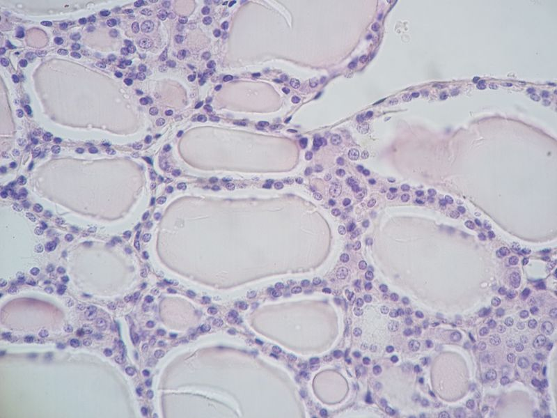 Difference Between Parafollicular and Follicular Cells