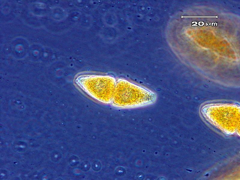 Key Difference - Uredospore vs Teliospore