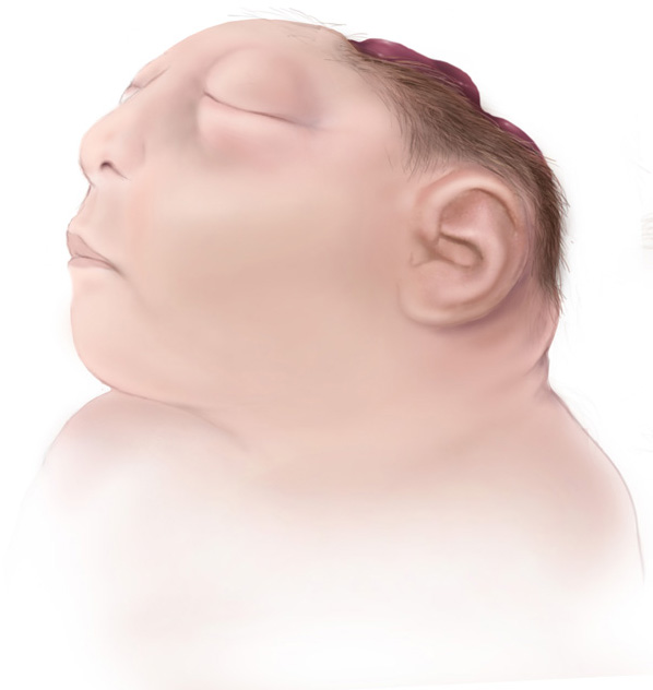 Difference Between Acrania and Anencephaly