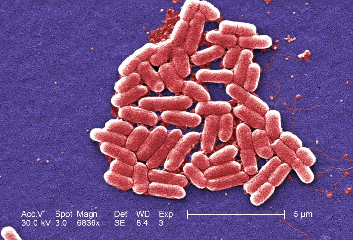 Difference Between E. Coli and Pseudomonas Aeruginosa