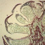 Difference Between Male and Female Gametophyte