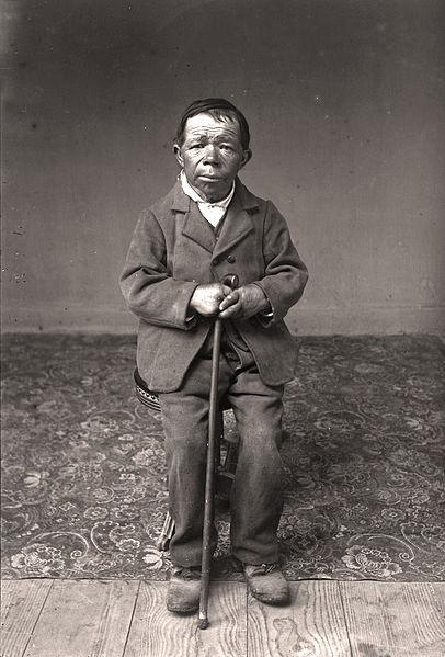 Key Difference - Dwarfism vs Cretinism